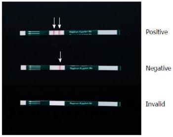 """Imagen A: La varilla de anticuerpos contra Helicobacter pylori, Rapirun (""""Rapirun Helicobacter pylori Antibody Stick""""). La muestra de orina es considerada positiva cuando se observan dos bandas rojas en la línea de análisis y de control (flechas), después de 15 minutos y es considerada negativa cuando solo se observa la línea control. La ausencia de una línea control indica un resultado inválido (Fotografía cortesía de Duc T Quach)."""
