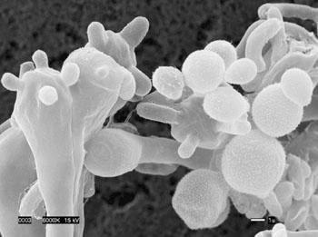 Imagen: Microfotografía electrónica de barrido (SEM) del hongo patógeno, Cryptococcus gattii (Fotografía cortesía de Edmond Byrnes / Joseph Heitman).
