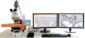 Imagen: Un sistema de análisis microscópico captura automáticamente hasta ocho láminas con cortes coloreados por inmunohistoquímica y realiza el análisis cuantitativo de las intensidades de coloración (Fotografía cortesía de TissueGnostics).