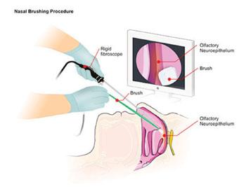 Imagen: La prueba de cepillado nasal implica la inserción de un rinoscopio rígido, de fibra óptica, dentro de la cavidad nasal del paciente. Posteriormente se inserta un cepillo estéril a lo largo del fibroscopio para recolectar neuronas olfatorias enrollando suavemente el cepillo a lo largo de la superficie de la mucosa (Fotografía cortesía del Dr. Gianluigi Zanusso, MD, PhD).