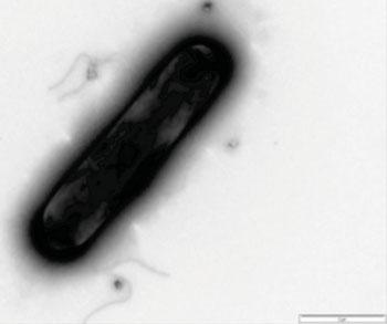 Imagen A: Foromicrografía de Clostridium difficile (Fotografía cortesía de la Universidad de Leicester).