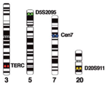Imagen: Ejemplos de cromosomas teñidos con la sonda de combinación FHACT: 3q26 (TERC) (en rojo), 5p15 (D5S2095) (en verde), 20q13 (D20S911) (en oro) y CEP7 (en agua) (Fotografía cortesía de la revista Cancer Genetics).