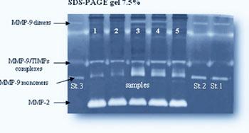Imagen: Separación por zimografía en gel de las metalorpteinasas de matriz (MMPs) en un gel de poliacrilamida al 7,5% (Fotografía cortesía del Consejo de Investigación Nacional Italiano).