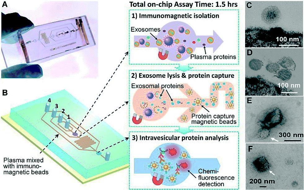 Imagen: El chip prototipo de polidimetilsiloxano (PDMS) que contiene una red de microcanales en cascada para el análisis de exosomas en multi-etapas (Fotografía cortesía de la Universidad de Kansas).