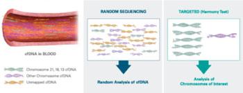 Imagen: En contraste con las pruebas que usan MPSS (secuenciación masivamente de las secuencias paralelas), la secuenciación al azar de todo el ADN, libre de células (cfADN), la prueba Harmony se concentra en el cfADN de los cromosomas de interés. Este método único, dirigido, permite un análisis más profundo y, en última instancia, produce resultados más exactos (Fotografía cortesía de Ariosa Diagnostics).