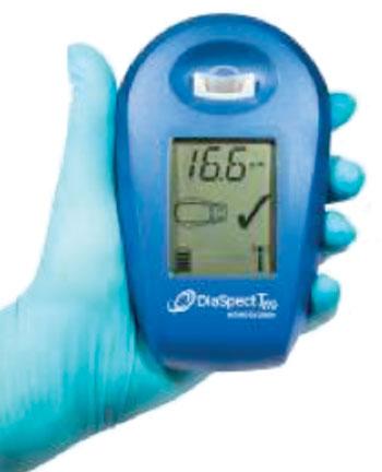 Imagen: El analizador de hemoglobina DiaSpect (Fotografía cortesía de EKF Diagnostics).