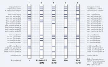 Imagen: La prueba rápida GenoType MTBDRsl para diagnosticar a los pacientes con tuberculosis multi-resistente a los medicamentos (MDR-TB), también suministra información sobre resistencias adicionales a los antibióticos (Fotografía cortesía de Hain Lifescience).