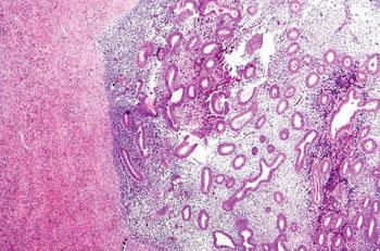 Imagen: Una fotomicrografía mostrando la endometriosis del ovario (Fotografía cortesía de Nephron).