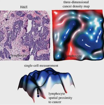 Imagen: Un lámina de histología coloreada con hematoxilina y eosina (H&E) y el mapa correspondiente de la densidad tridimensional del cáncer, lo cual facilita la medición de la proximidad espacial al cáncer para cada uno de los linfocitos individuales en la imagen (Fotografía cortesía del Instituto para la Investigación del Cáncer).