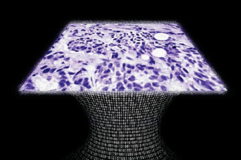 Imagen: Una muestra de tejido creada por el microscopio sin lentes (Fotografía cortesía del Prof. Aydogan Ozcan).