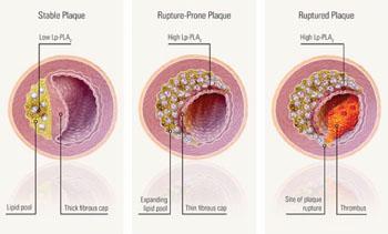Imagen: Cuando la cantidad de fosfolipasa A2 asociada a la lipoproteína (Lp-PLA2 ) es alta, esto es una indicación de que la placa tiene más probabilidad de romperse del revestimiento interior de la arteria a la sangre, favoreciendo la generación de un coágulo sanguíneo peligroso que puede provocar un ataque cardiaco o apoplejía (Fotografía cortesía de diaDexus).