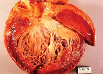 Imagen: Una patología de la cardiomiopatía idiopática. El ventrículo izquierdo abierto del corazón muestra un ventrículo izquierdo dilatado, engrosado, con fibrosis subendocárdica, manifestada como una blancura aumentada del endocardio en la autopsia (Fotografía cortesía del Dr. Edwin P. Ewing, Jr.).