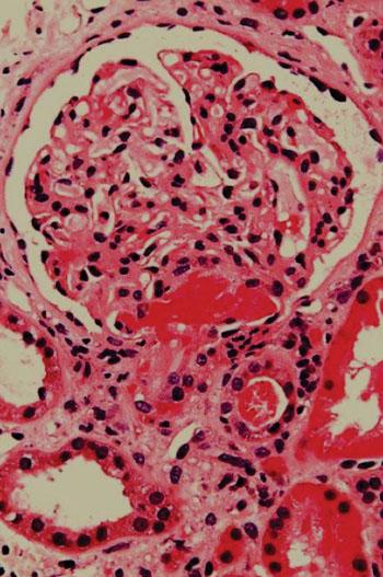Imagen: Una histología de una biopsia renal de un paciente con púrpura trombótica trobocitopénica (TPP), mostrando una microangiopatía trombótica aguda (Fotografía cortesía de Nephron).