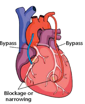 Imagen: Injerto de derivación de las arterias coronarias (Fotografía cortesía del Instituto del Corazón de Intermountain).
