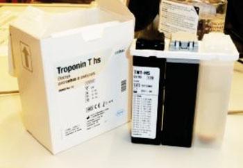 Imagen: El análisis de troponina de alta sensibilidad ELECSYS (hs-cTnT) (Fotografía cortesía de Roche).
