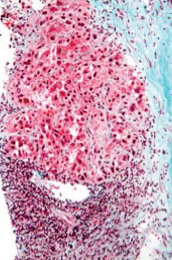 Imagen: Micrografía de un carcinoma hepatocelular tomada de una biopsia hepática y coloreada con la coloración tricrómica (Fotografía cortesía de Wikimedia Commons).