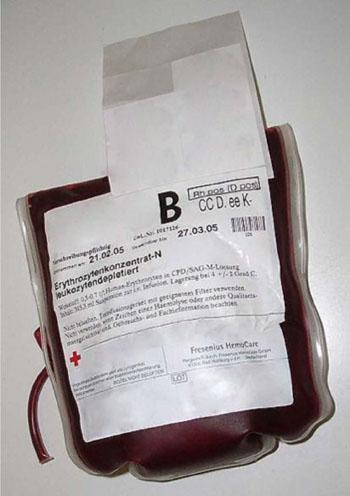 Imagen: Una bolsa de plástico que contiene 0,5 a 0,7 litros de concentrado de hematíes en solución de citrato, fosfato, dextrosa, y adenina (CPDA) (Fotografía cortesía de Fresenius HemoCare).