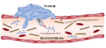 Imagen: La medición del ADN tumoral circulante (ctADN) se puede utilizar para diagnosticar a los pacientes con linfoma difuso de células B (DLBCL) y para predecir su probable respuesta al tratamiento (Fotografía cortesía del Instituto Nacional del Cáncer).