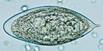 Imagen: Un huevo de Schistosoma haematobium en un montaje húmedo de concentrados de orina, que muestra la espina terminal característica (Foto cortesía del CDC).
