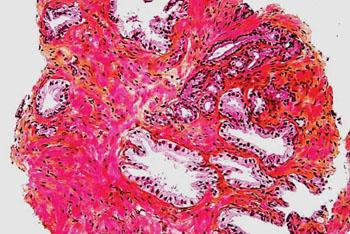 Imagen: Un estudio histopatológico de una biopsia de próstata mostrando las glándulas prostáticas normales y las glándulas de un adenocarcinoma de próstata en la parte superior derecha de la imagen (Fotografía cortesía de Nephron).