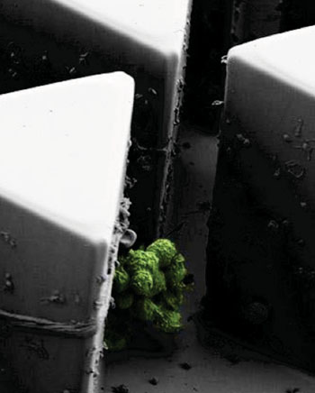 Imagen: Un grupo de células de cáncer con una marca fluorescente en equilibrio sobre la punta de un poste dentro del Cluster-Chip (Fotografía cortesía del Prof. Mehmet Toner, PhD).