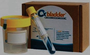 Imagen: El kit Cxbladder, diseñado como una prueba de laboratorio no invasiva para la detección del cáncer de vejiga (Fotografía cortesía de Peter Wren-Hilton).