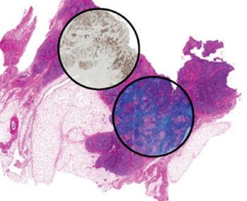 Imagen: Tejido mamario coloreado para mostrar hematoxilina y eosina (corte de tejido grande). Se han seleccionado dos regiones para mostrar una sobrecapa de coloración molecular (izquierda: citoqueratina; derecha: coloración tricrómica de Masson). Todas las 3 coloraciones fueron generadas computacionalmente utilizando datos de imágenes químicas obtenidas a través de un sistema nuevo de imágenes de espectroscopia infrarroja de nuevo desarrollo, y sin llegar a colorear el tejido (Fotografía cortesía del Prof. Rohit Bhargava, Instituto Beckman de Ciencia y Tecnología Avanzada de la Universidad de Illinois en Urbana-Champaign ).
