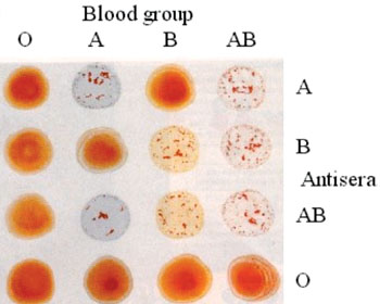 Imagen: Prueba de hemaglutinación de glóbulos rojos, utilizada para clasificar los grupos sanguíneos ABO (Fotografía cortesía del Colegio Universitario de Londres).