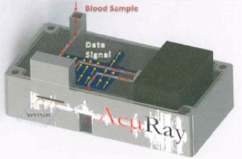 Imagen: Un modelo prototipo del dispositivo de diagnóstico AcμRay para los puntos de atención (Fotografía cortesía de la Universidad de Emory).