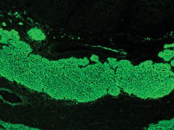 Imagen: Patrón de inmunofluorescencia con isotiocianato de fluoresceína (FITC) de anticuerpos antiendomisio, producido usando suero de un paciente con la enfermedad celíaca en esófago de mono (Fotografía cortesía de Simon Caulton).