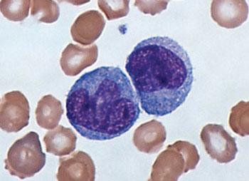 Imagen: Un frotis de sangre coloreado con Giemsa mostrando monocitos (Fotografía cortesía del Dr. Graham Beards).