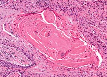Imagen: Una histopatología de un carcinoma escamocelular de la laringe (Fotografía cortesía de Nikon).