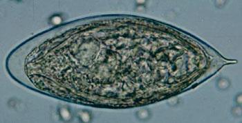 Imagen: Un huevo de Schistosoma haematobium en un montaje húmedo de concentrados de orina, donde se muestra la espina terminal característica (Fotografía cortesía del CDC).