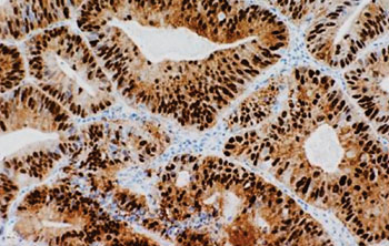 Imagen: Una coloración inmunohistoquímica de un adenocarcinoma colorrectal que muestra coloración nuclear y citoplasmática de la β-catenina (Fotografía cortesía de la Facultad de Medicina de la Universidad de Indiana).