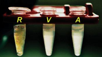 Imagen: La comparación visual de muestras de esputo humanos: (R) una muestra de esputo en bruto no-licuada; (V) una muestra de esputo licuada utilizando un mezclador vórtex; (A) una muestra de esputo licuado utilizando el dispositivo acustofluídico (Fotografía cortesía del Prof. Tony Jun Huang, PhD).