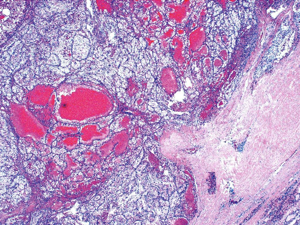 Imagen: Un estudio histopatológico de un carcinoma metastásico de células renales (Fotografía cortesía del Dr. Mark R. Wick).