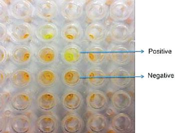 Imagen A: Una visualización de una reacción de amplificación isotérmica mediada por bucle (LAMP) en un formato de placa de 96 pozos que muestra diferencias de color entre las muestras positivas y negativas (Foto cortesía de la Unidad de Consejo de Investigación Médica, Gambia).