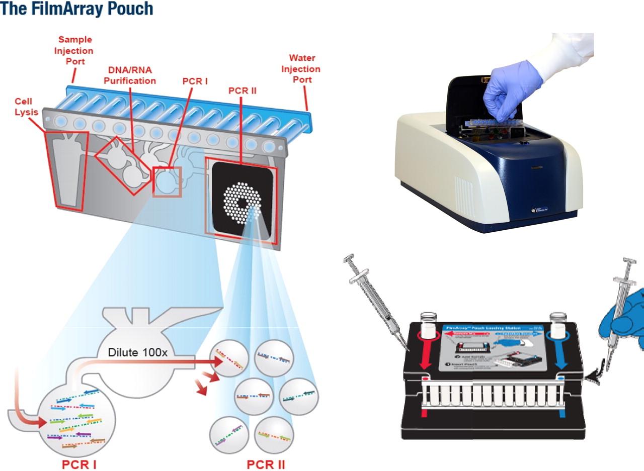 Imagen: El sistema de reacción en cadena de polimerasa multiplex,FilmArray, disponible para el diagnóstico de patógenos causantes de la meningitis y la encefalitis (Fotografía cortesía de BioFire Diagnostics).