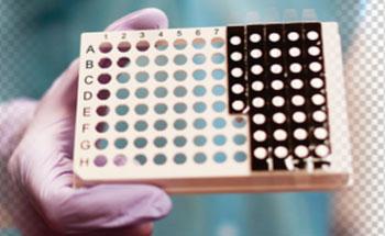 Imagen: El panel de patógenos respiratorios NxTAG detecta simultáneamente 21 patógenos respiratorios en un sistema cerrado de un solo tubo (Fotografía cortesía de Luminex).