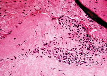 Imagen: El aspecto histológico del tejido con tendinosis muestra un patrón característico de los fibroblastos y tejido tipo granular, vascular, atípico (Fotografía cortesía del Dr. Barry S. Kraushaar, MD).