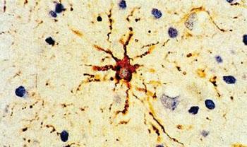 Imagen: Una inmunohistoquímica de la proteína ácida fibrilar de la glía (GFAP) el componente principal de los filamentos que se encuentran en los astrocitos protoplasmáticos y fibrilares en el cerebro. La proteína se visualiza como un depósito de color marrón (Fotografía cortesía de Roy Ellis).