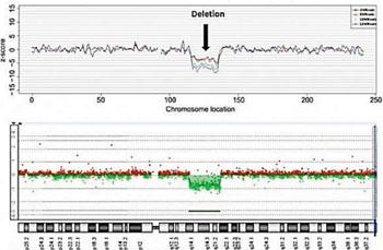 Imagen A: La detección de una deleción cromosómica mediante NIPT utilizando plasma sanguíneo materno (arriba) es similar a la detección con el método tradicional usando tejido fetal (abajo) (Fotografía cortesía dela Facultad de Salud de la Universidad de California en San Diego).