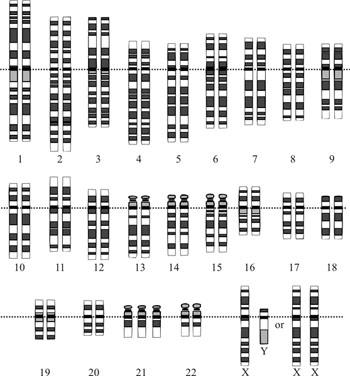 Imagen: El cariotipo para la trisomía 21 o síndrome de Down: la imagen muestra claramente las tres copias del cromosoma 21 (Fotografía cortesía de Wikimedia Commons).