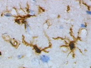 Imagen: Una micrografía de las células microgliales, que expresan selectivamente la proteína TREM2 (Fotografía cortesía de Wikimedia Commons).