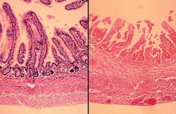 Imagen: Una histopatología comparando el intestino normal a la izquierda, con un intestino afectado por enterocolitis necrotizante (ECN) en la derecha, que muestra necrosis hemorrágica, comenzando en la mucosa y extendiéndose hasta afectar la pared muscular, con la posibilidad de perforación (Fotografía cortesía de la Facultad de Medicina de la Universidad de Utah).