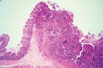 Imagen: Un estudio histopatológico de adenocarcinoma de colon compuesto por estructuras glandulares caóticas que están alineadas por una o más filas de células cancerosas con o sin producción de moco (Fotografía cortesía de la Universidad Johns Hopkins).