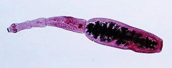 Imagen: Una microfotografía de la morfología ultraestructural mostrado un cestodo adulto, Echinococcus granulosus (Fotografía cortesía del Dr. Peter M. Schantz).