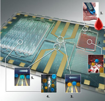 Imagen: Un primer plano del biochip de inmuno-captura diferencial (Fotografía cortesía del Dr. Umer Hassan, Universidad de Illinois).