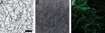 Imagen A: Una microscopía confocal de barrido láser de coágulos construidos a partir de fibrinógeno adulto (A), fibrinógeno neonatal (B), o una mezcla de los dos (C) Escala = 20 micras (Fotografía cortesía de la Universidad Estatal de Carolina del Norte).